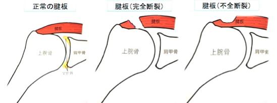 板 断裂 腱